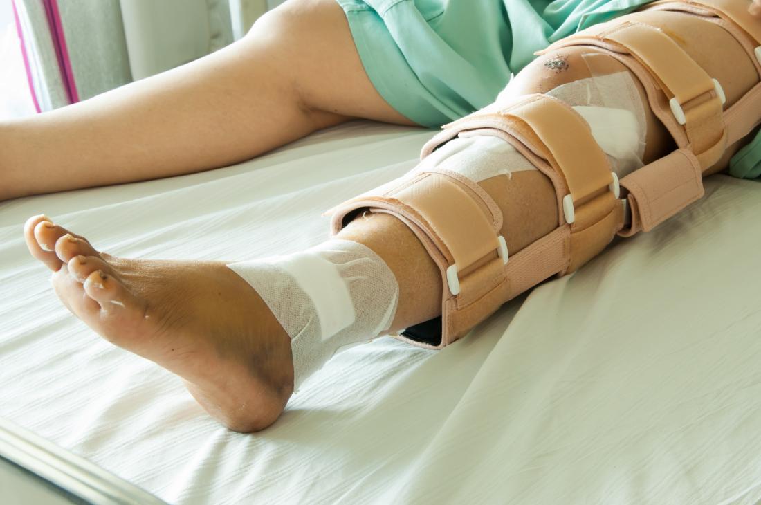 Personne avec une jambe cassée, allongé sur le lit d'hôpital avec orthèse et des bandages
