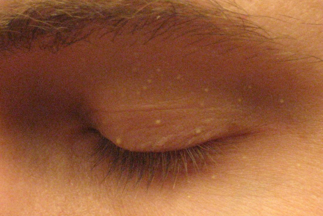 Milia on the eye, un'area comune per milia en plaque.