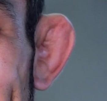 カリフラワー耳ウィキコモンズimage