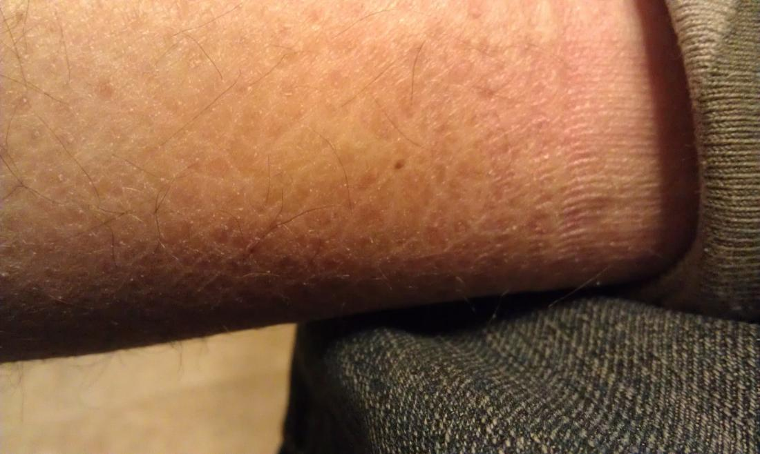 Pele afetada por ictiose vulgar.