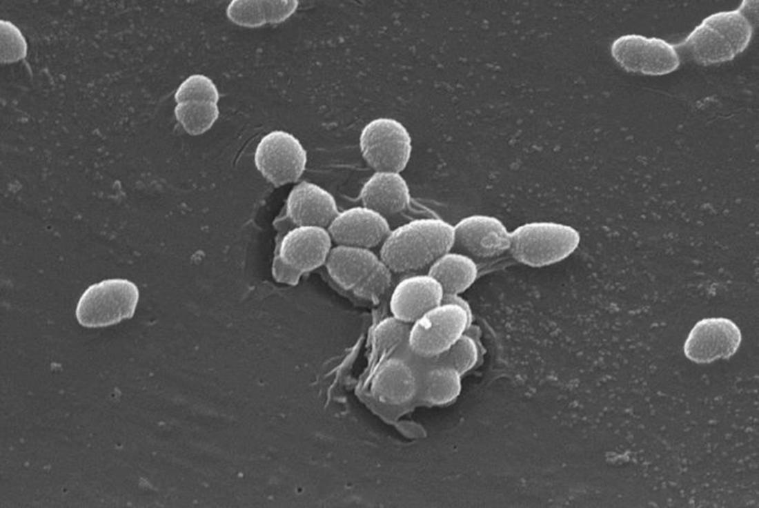Enterococcus faecalis細菌。