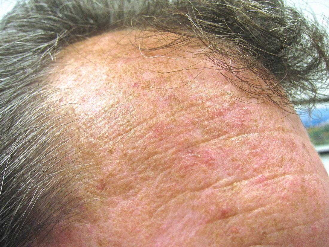 queratose actínica na testa de um homem