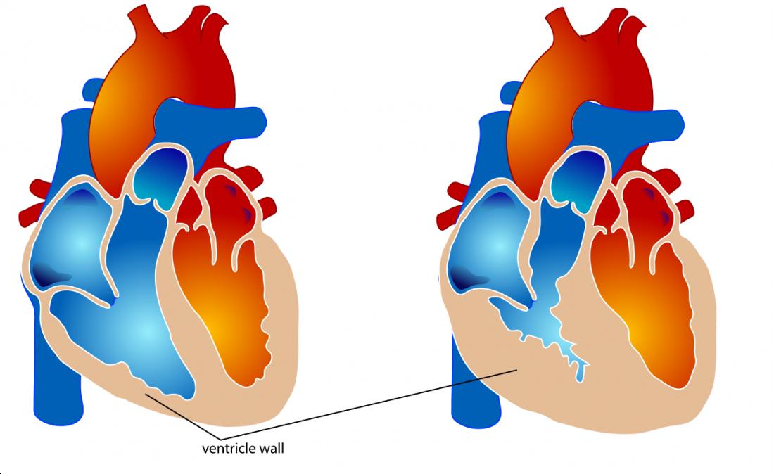 Hipertrofia ventricular direita