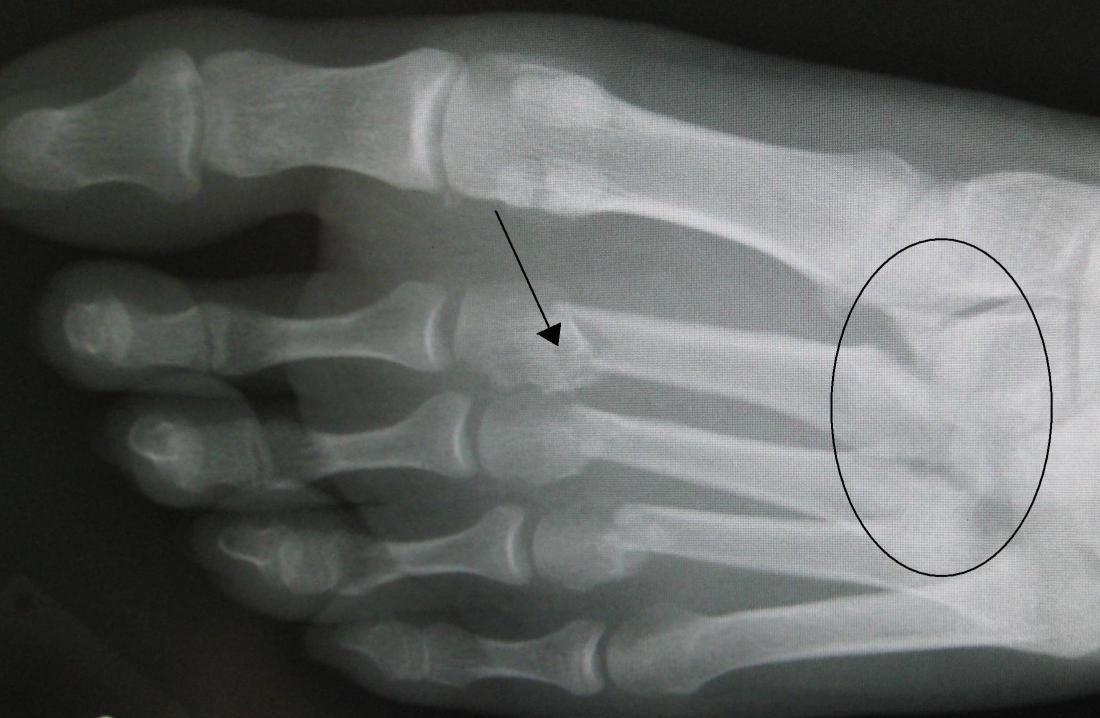 Lisfranc gãy xương