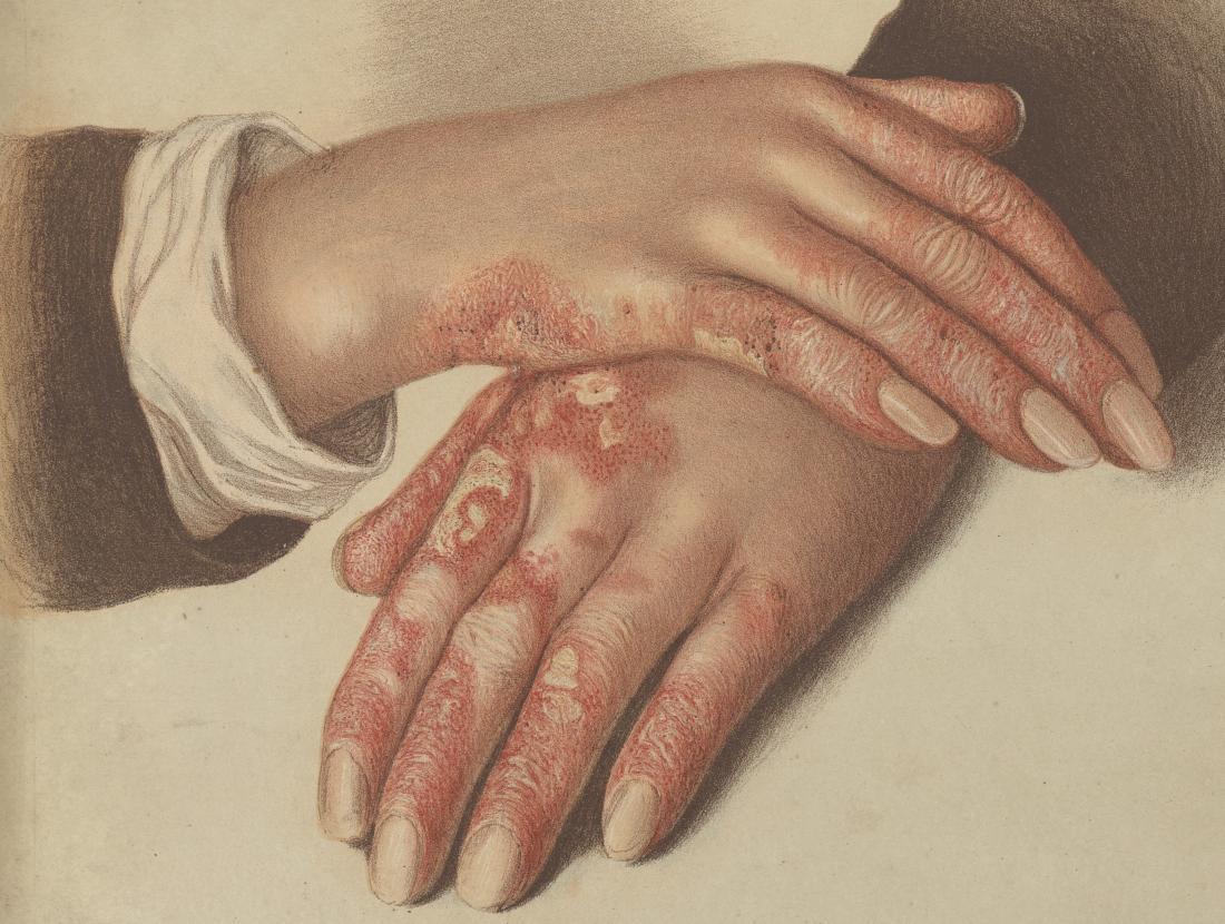 "Ellerde Discoid lupus - Resim: E. Burgess, Lupus Erythematosus. Kromolitografik. c. 1878-1888, Wellcome Kütüphanesi, Londra </ br>""></p> <p align="