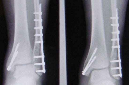 Chirurgische Reparatur einer trimalleolaren Fraktur.