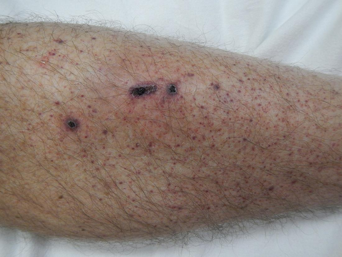 Petechia ou une éruption cutanée de l'anémie de la jambe inférieure.