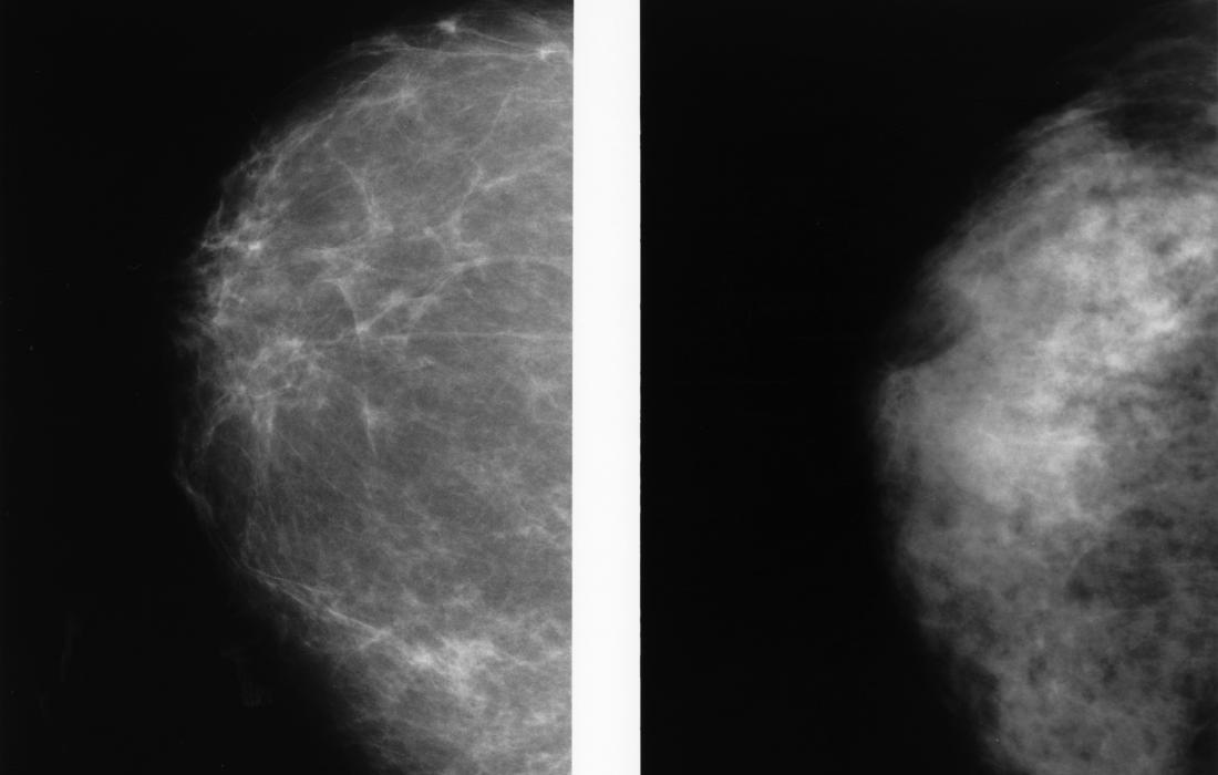 Hình ảnh vú cho thấy vú dày đặc (trái) và vú béo (phải)
