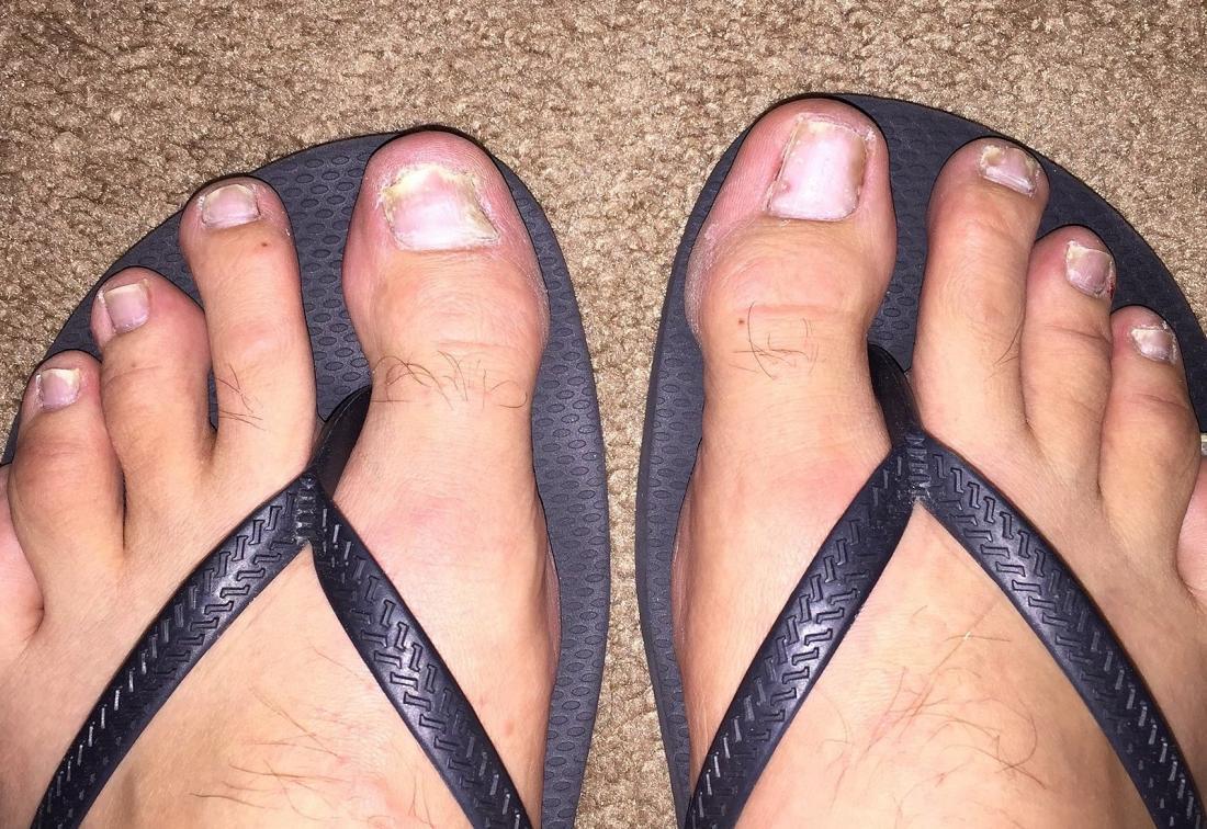 Le psoriasis des ongles dans les ongles.
