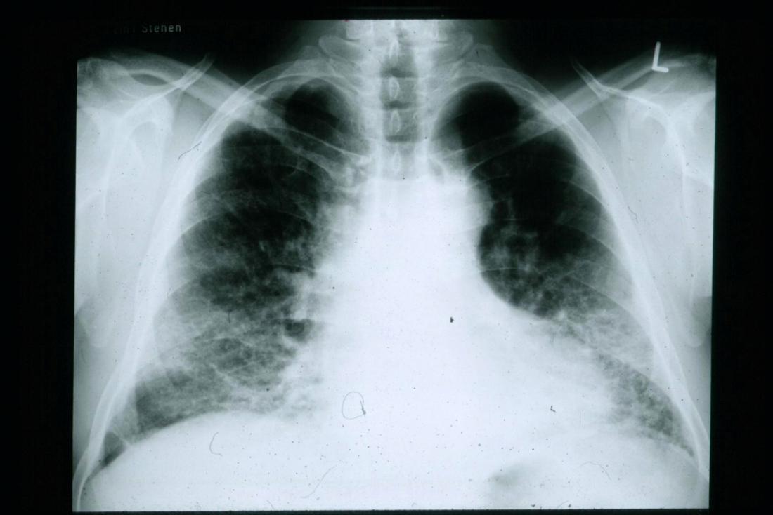 Ein Röntgenbild zeigt idiopathische pulmonale Fibrose (IPF).