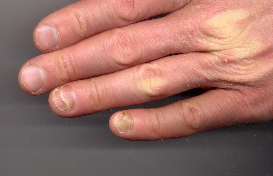 Onycholysis nell'unghia.