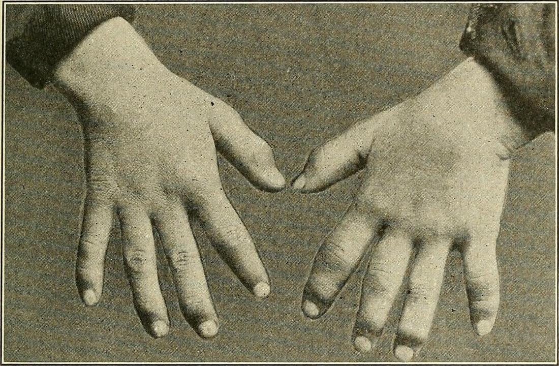 "Syfilitic dactylitis - Image credit: Internet Archive Book Images, (2015, 17 września) </ br>""></p> <p align="