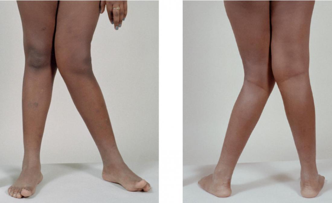 Genu valgum、またはknock knees