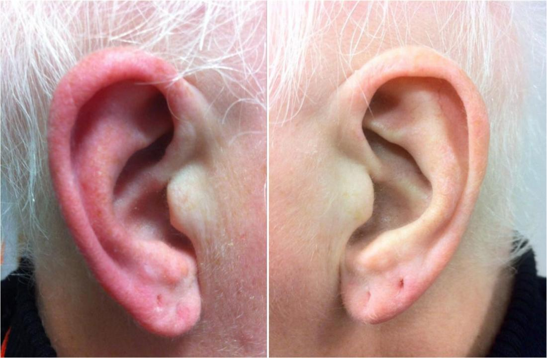 Red-ear-Syndrom