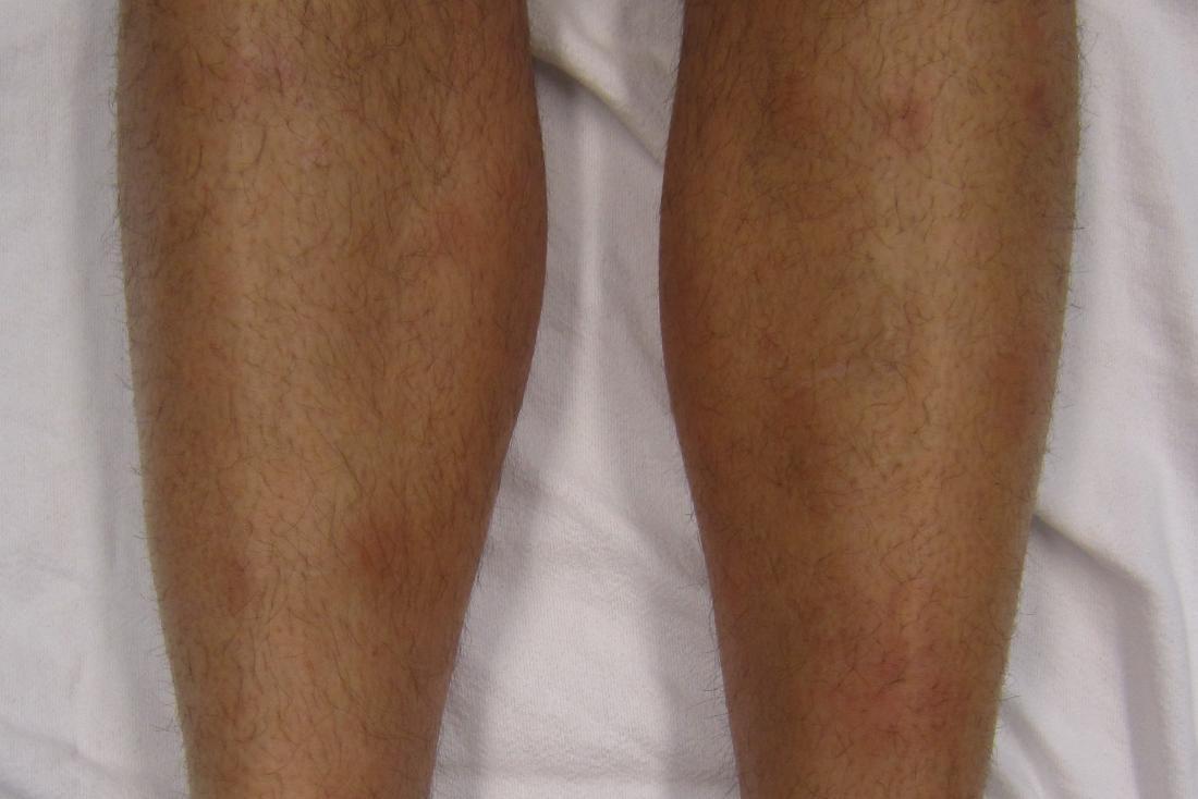紅斑の瘤の痛み