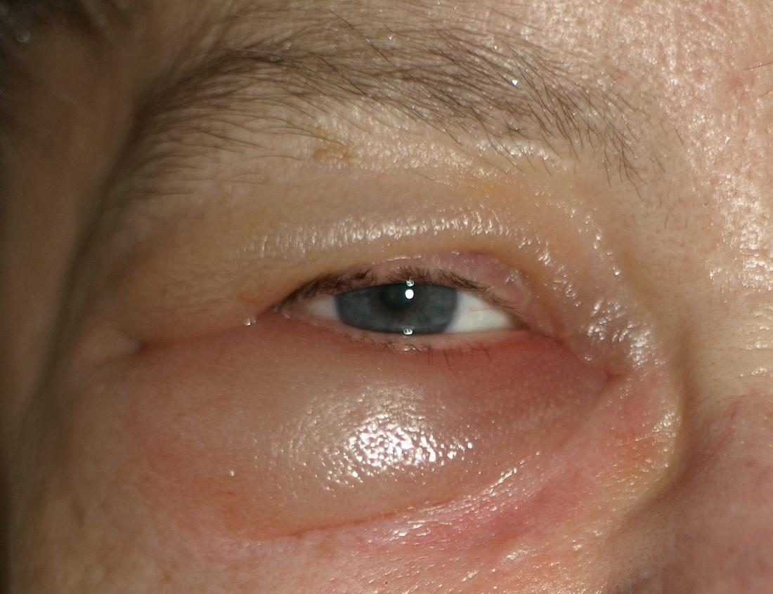 眼窩周囲浮腫の画像