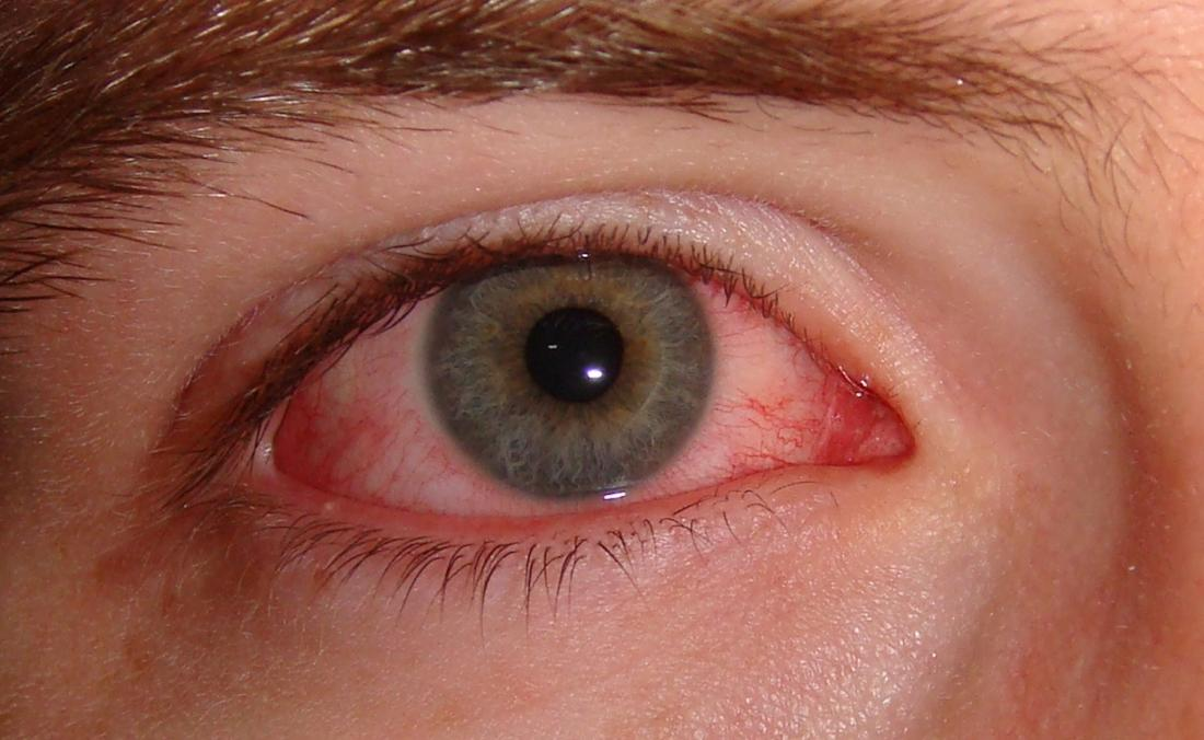 L'erba, la polvere e il polline degli alberi possono causare allergia agli occhi rosa.