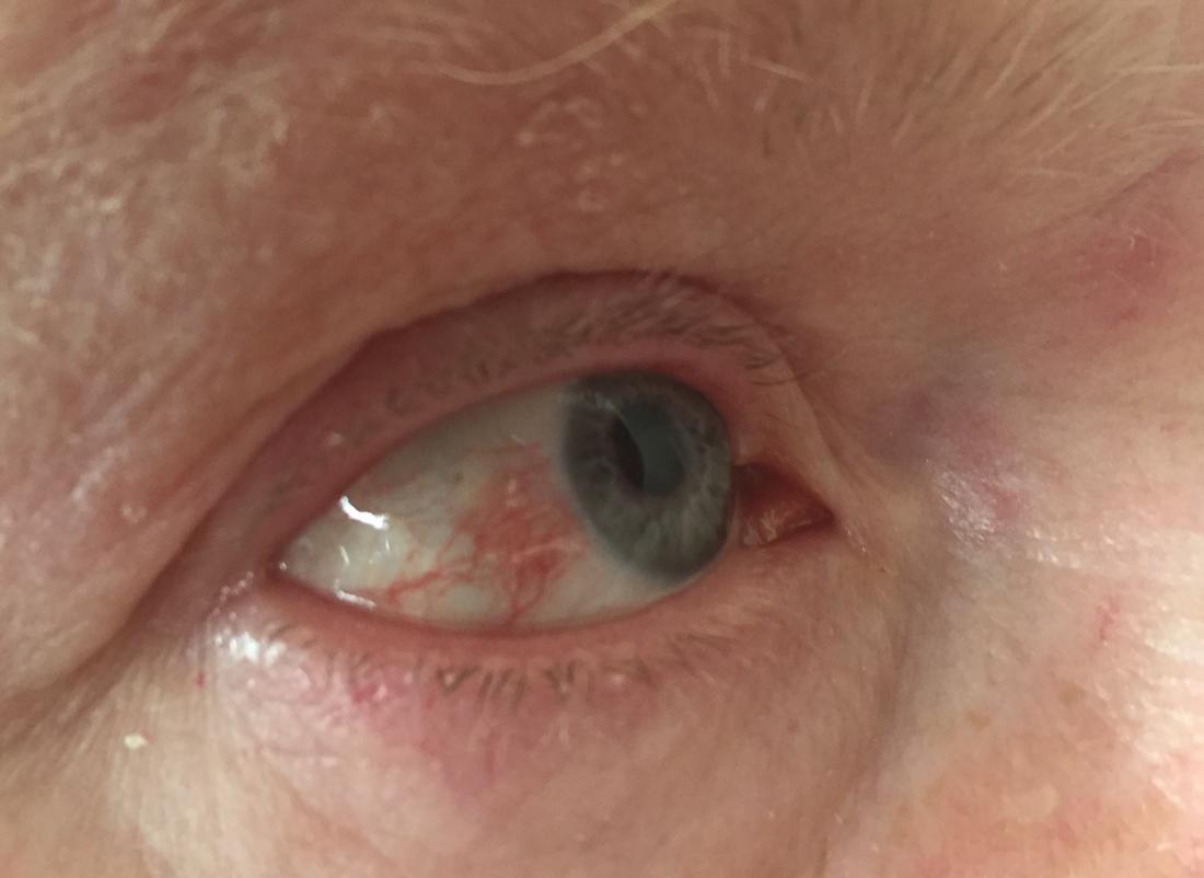 erpes zoster vírus atacando testa e olho