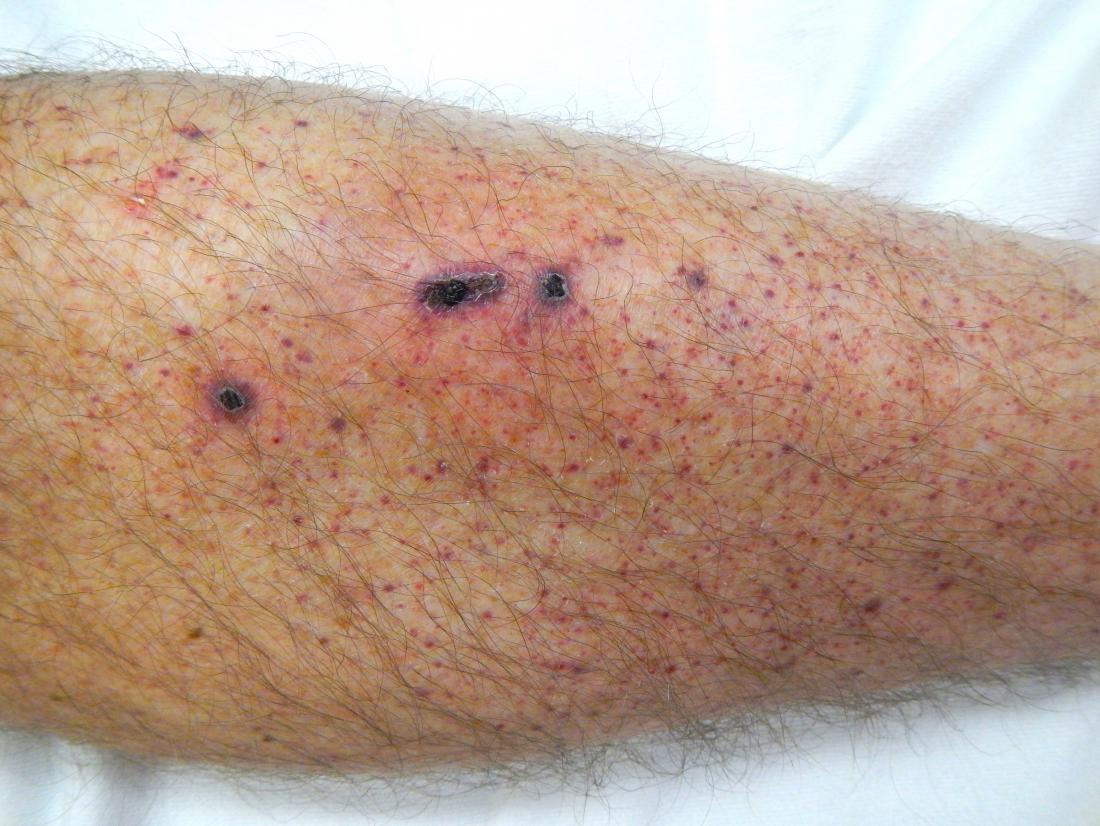 Pétéchie de la jambe inférieure