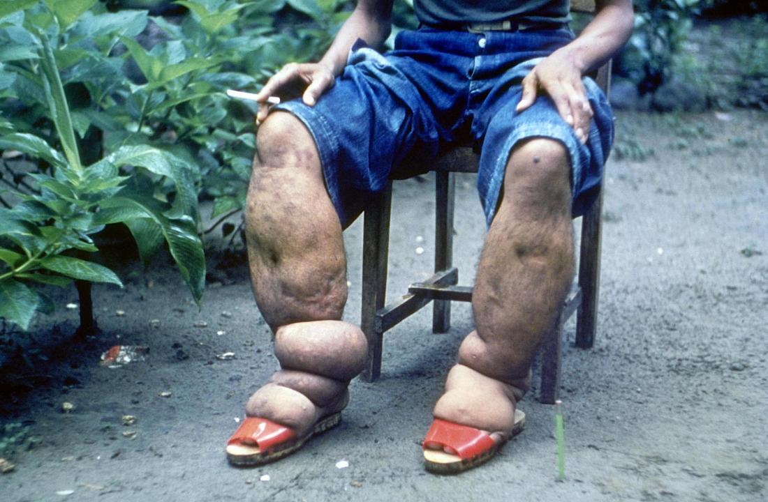 Еленатис в краката на човека.