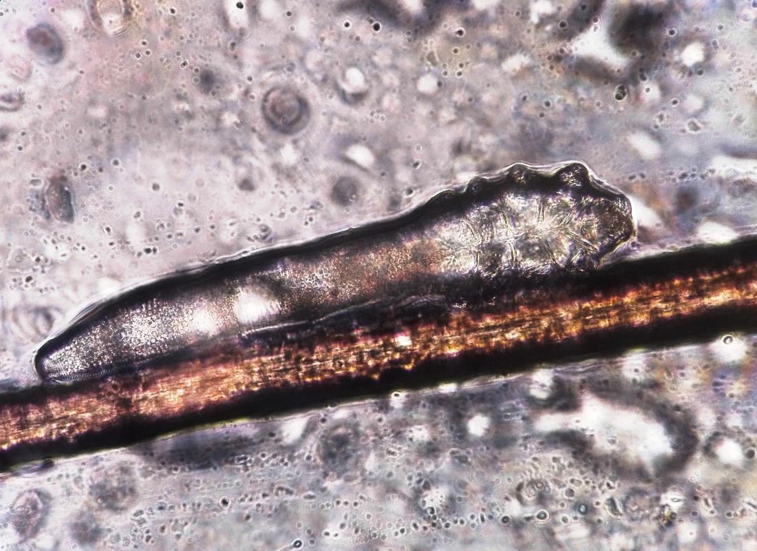 vergrößertes Bild der Demodex folliculorum Milbe