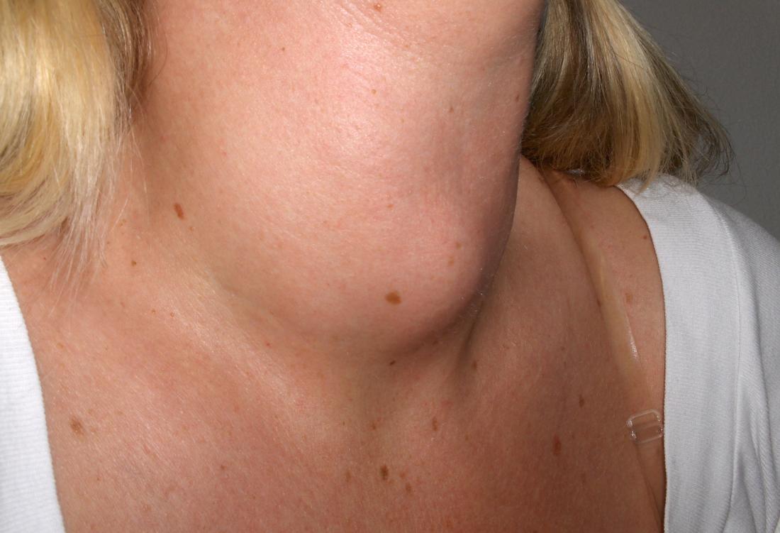 Struma devido ao hipotireoidismo