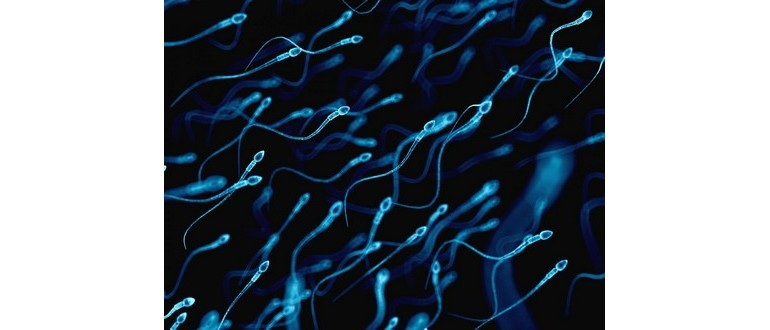 Spermakonsistenz